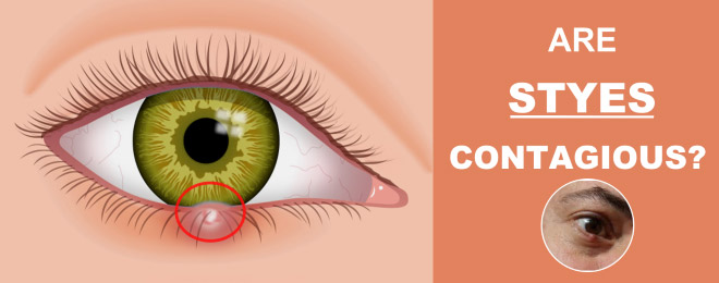 Are Styes Contagious?