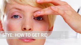 how to get rid of welders eye