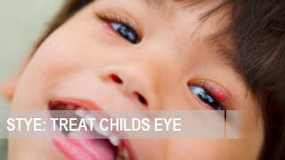 How to treat a stye of a childs eye