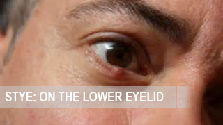 How to treat stye on the lower eyelid