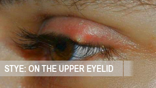 How to treat stye on the upper eyelid