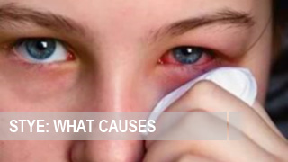 What causes a Stye on the Eye