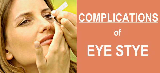 Complications of eye stye