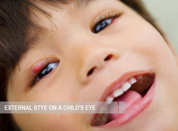 External stye on a child's eye