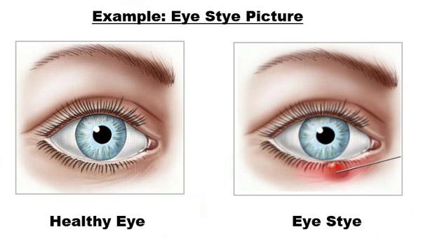 Eye Stye Disease