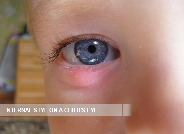 Internal stye on a childs eye