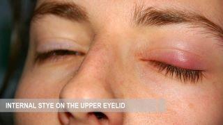 Symptoms, treatment and prevention of internal eye stye